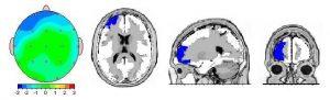 نقشه مغزی در فرد نرمال