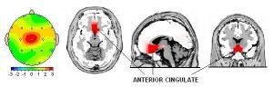 مثالی از نقشه مغزی در افراد افسرده