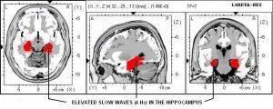 مثالی از نقشه مغزی فرد مبتلا به آلزایمر